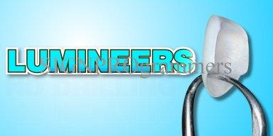 07-005 DENTAL LUMINEERS 192×384 rgb 34